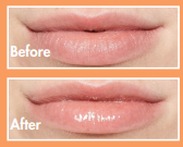 Lip oil bare before & after